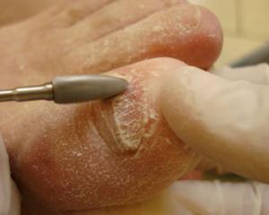 Грибок ногтей на ногах на что влияет на