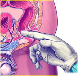 Простата железа размеры