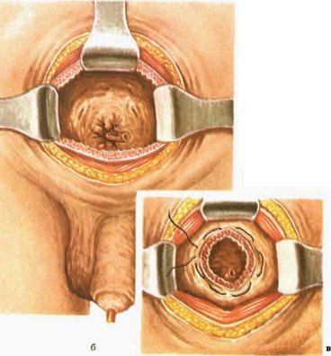 Реабилитация после операции на влагалище