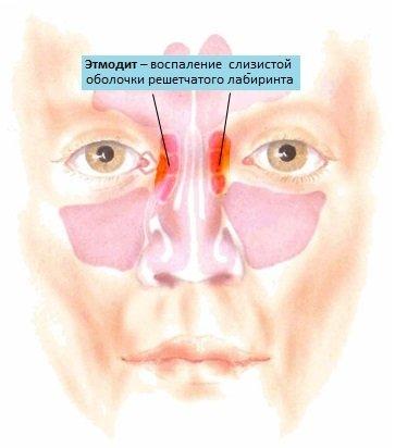 Етмоїдит – симптоми і лікування у дорослих