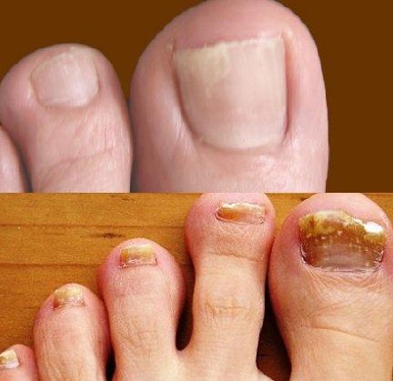 Как можно убрать грибок ногтей