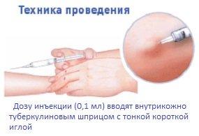 Как дома сделать пробу на антибиотики
