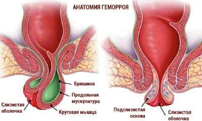 Die Hämorrhoide bei den Frauen in den Lungen