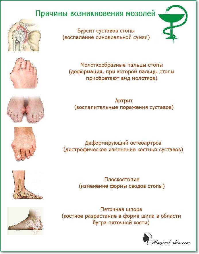 Чем вылечить сухую мозоль на ноге в  307