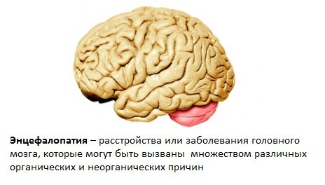 Енцефалопатія головного мозку – що це таке?