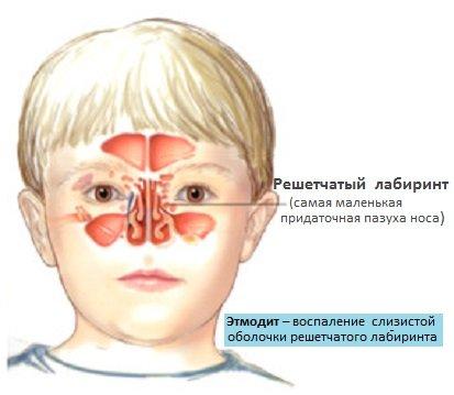 Етмоїдит – симптоми і лікування у дітей