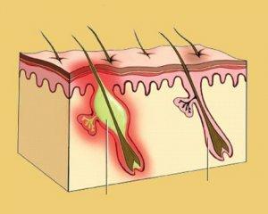Акне: фото, причини і лікування в домашніх умовах