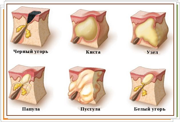 Воспаление сальных желез малых губ