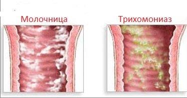 молочниця у жінок симптоми фото