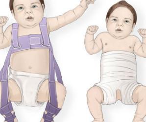 Дисплазія кульшового суглоба у новонароджених лікування