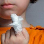 Опік у дитини: що робити, допомога, лікування та фото