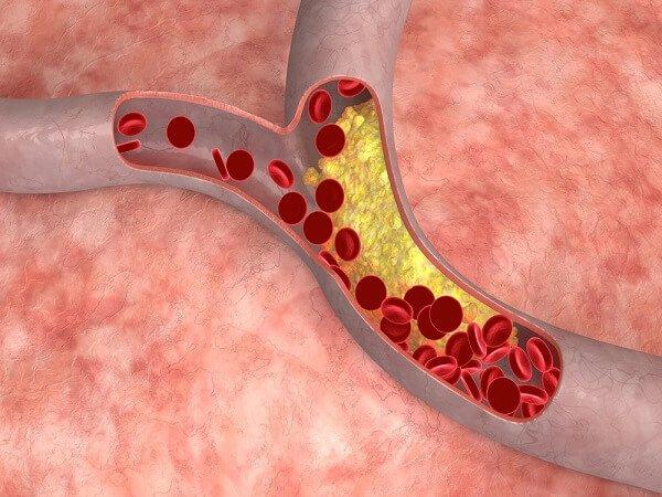 Снижение холестерина народными средствами с семечками подсолнуха