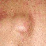 Почему появляются шишки под кожей 2