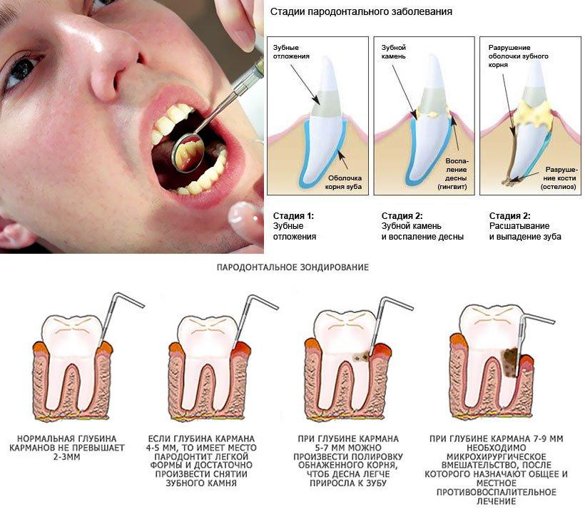 Механизм образования зубного камня
