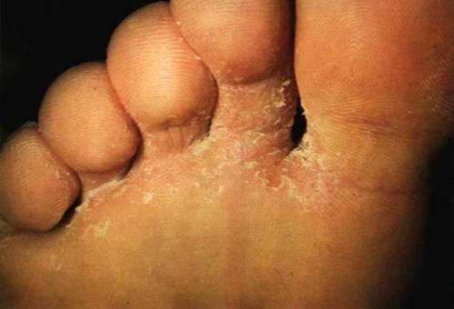 Кожа на пальцах ног шелушится и чешется