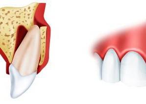 Коли виникає вивих зуба і як його лікувати