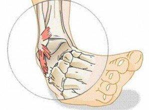 Вивих ноги як лікувати в домашніх умовах