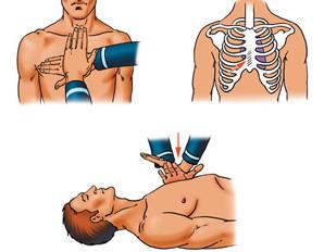 Масаж серця при ураженні електричним струмом