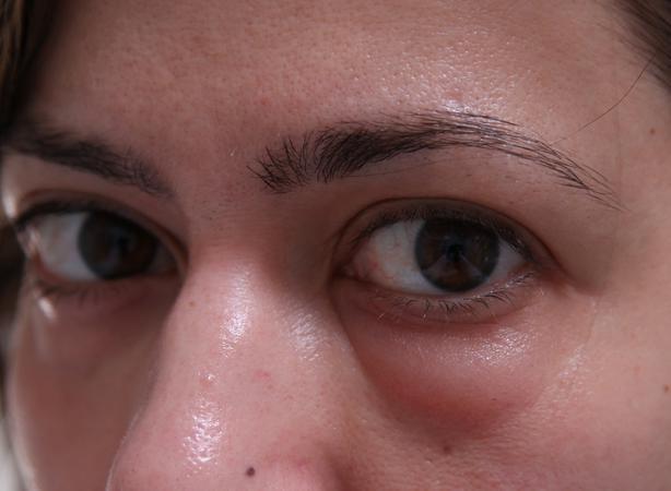 Как сделать чтоб убрать отек с глаз