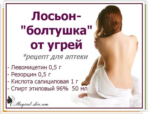 Состав болтушки от прыщей рецепт дерматолога