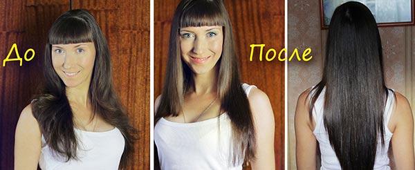 Рост волос из родинок