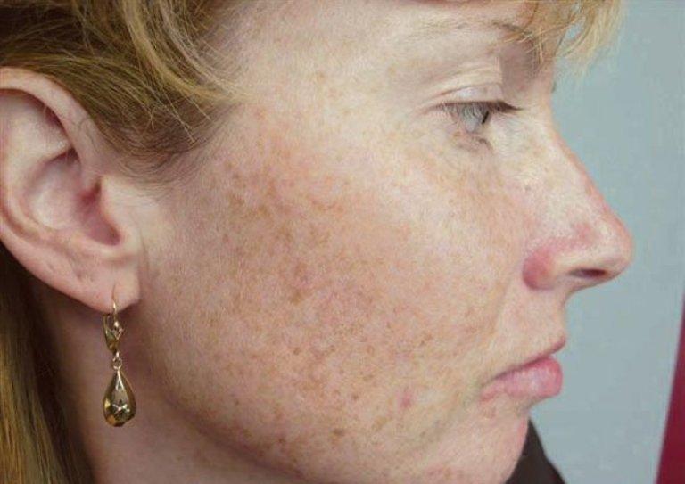 Бледная кожа лица причины у взрослого