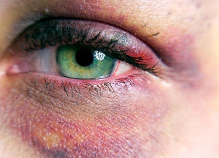 Синці від удару під очима: як позбутися, засіб від синців