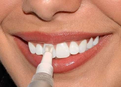 Как сделать зубы светлей 17