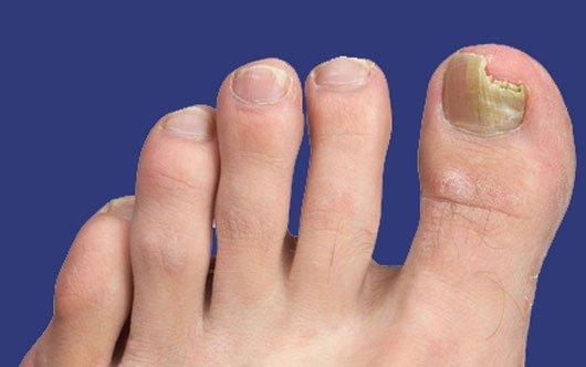 Грибок ногтей на ногах слоятся