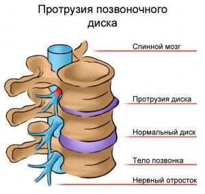 Остеохондроз шийного відділу хребта с6- с7 с7 - t h1