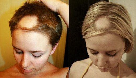 Почему после родов сильно выпадают волосы