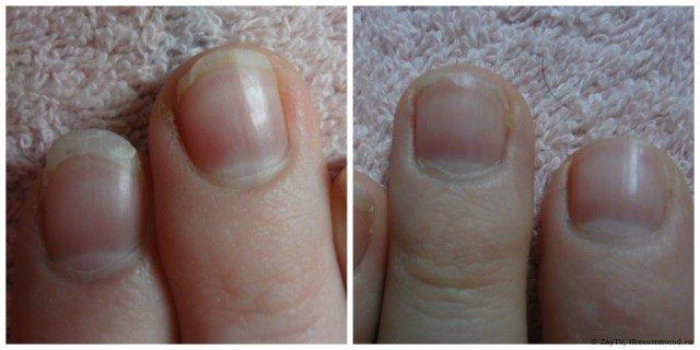 Ноготь большого пальца ноги лечение