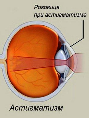 Как сделать так чтобы зрение показало хуже