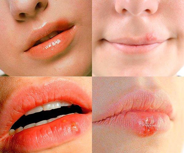 Чем мазать губы в домашних условиях 720