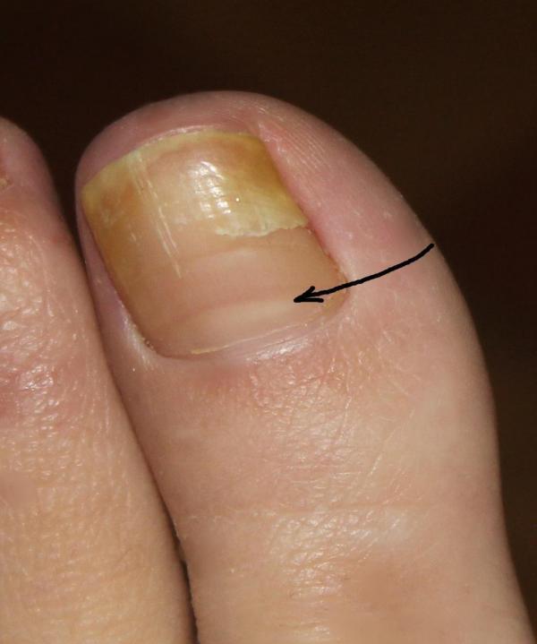 Ногти на ногах трескаются вдоль это грибок