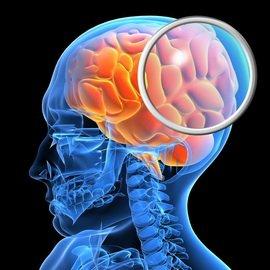 a5c6ac4a2f2cd7a9905a1485f5e047af Черепно мозкові травми: ознаки і фотомордочка відкритих і закритих черепно мозкових травм