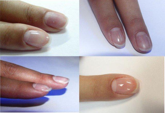 Как укрепить ногти на руках в 7
