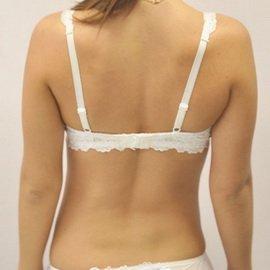 Левосторонний грудо поясничный сколиоз 1 степени