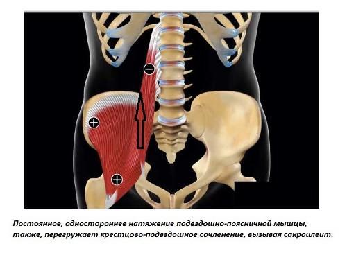 Болит тазовая кость при остеохондрозе