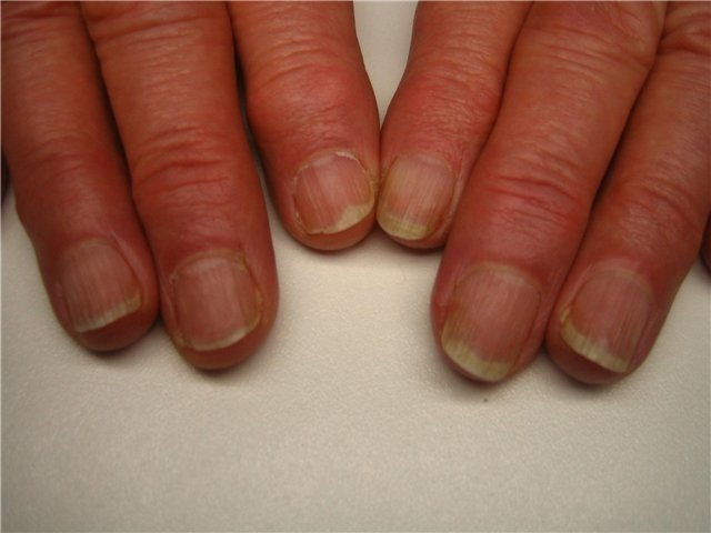Что значит пожелтевшие ногти 161