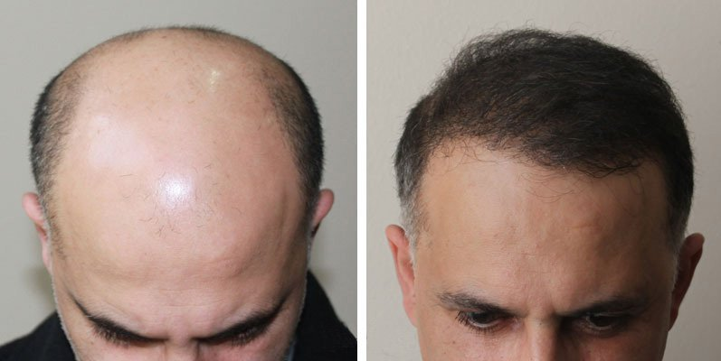 Пересадка волос отзывы фото
