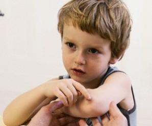 Мазь від синців і ударів для дітей