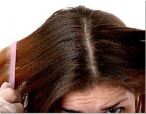 Грибок волосся: різновиди, прояви, лікування. |