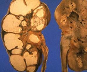 Туберкульоз нирок і сечовивідних шляхів: причини, шляхи передачі та симптоми захворювання –