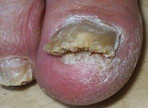 Нігтьовий грибок на руках і ногах: лікування |