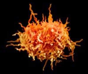 Мікоплазма у чоловіків: симптоми і лікування