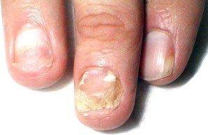 Своєчасне лікування грибка нігтів на ногах – запорука вашого здоров'я |