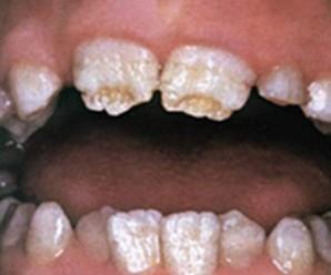Гіпоплазія емалі зубів, постійних у дорослих і молочних у дітей: симптоми і лікування