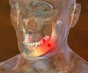 Околочелюстной абсцес: симптоми і лікування