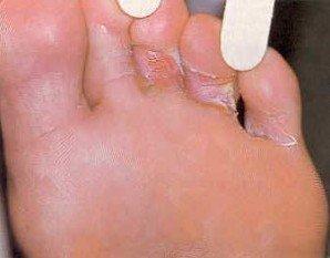 Грибок між пальцями ніг: лікування пальців на ногах |